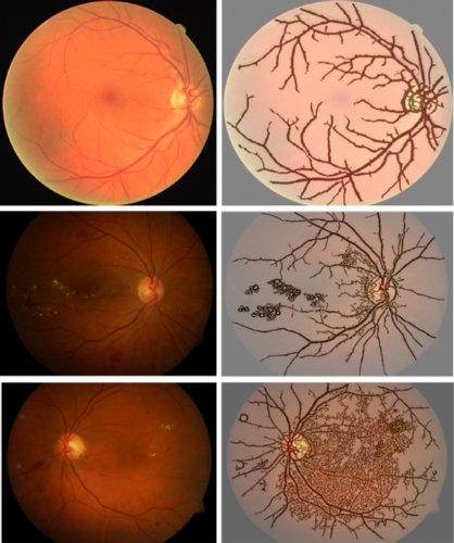 images of retina