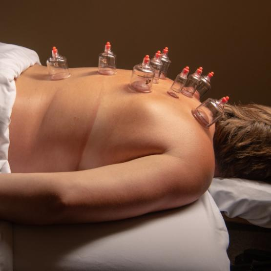 Cupping therapy to detoxify, reduce pain and support athletic recovery